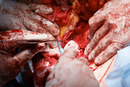 flesh surgery: cauterize close-up with forceps and cloagulator with many surgeons hands covered in blood and open wound with flesh and fat