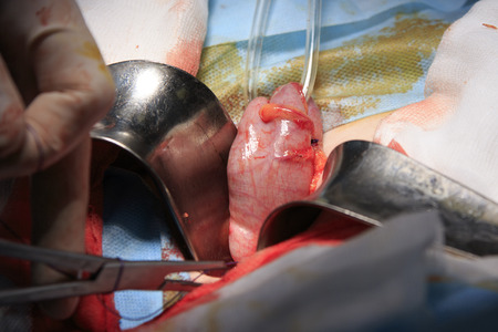 ileum: gut outside the body close-up during the colostomy surgery