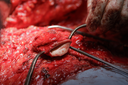 entrails stomach: Excised navel holden by surgical tools during the stomach surgery close-up Stock Photo