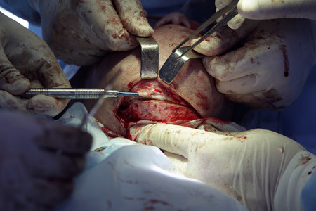 flesh surgery: Chin surgery close-up with open wound and an incision on a bone