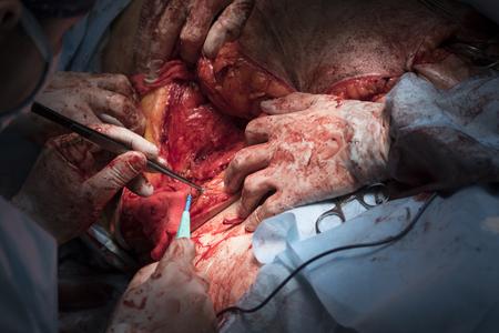 flesh surgery: Surgeon cauterizing vessels with coagulator and tweezers close-up Stock Photo
