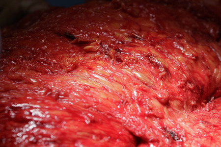 flesh surgery: human flesh without skin close-up during the surgery Stock Photo