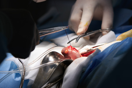 colostomy: surgery close-up with surgeon cuts off the thread with scissors during making of stoma