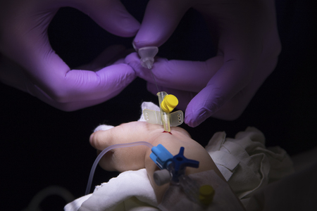 pierce: Catheter in little childs arm with a drop of blood and anesthesiologists hands pull out the needle