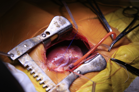 cu: Open heart surgery with different surgical tools and tubes connected to a heart closeup Stock Photo
