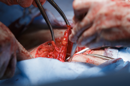 flesh surgery: Uterus tissues macro during the hysterectomy surgery