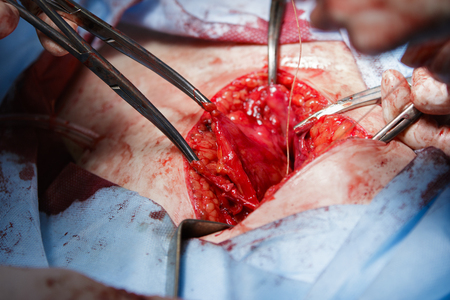 flesh surgery: Uterus removal through the belly surgery close-up with tissues ends tied to clamps Stock Photo