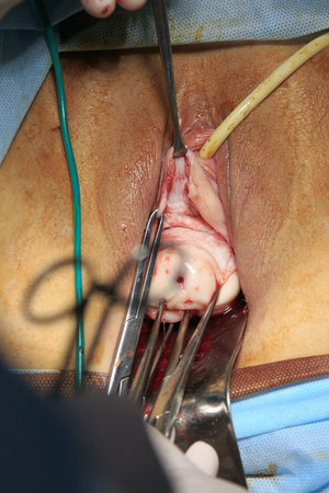 perineum: Female genitalia close-up with uterus outside during the removal surgery with surgical tools in foreground