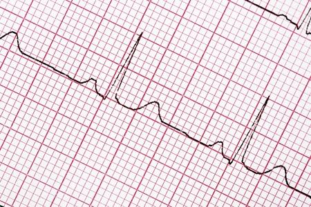 Digitally recorded ECG graph - electrocardiogram