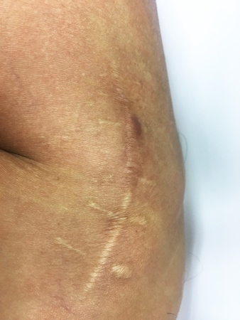 Scar on the knee of south east asia man skin after operate on tendon knee from playing football by the doctor