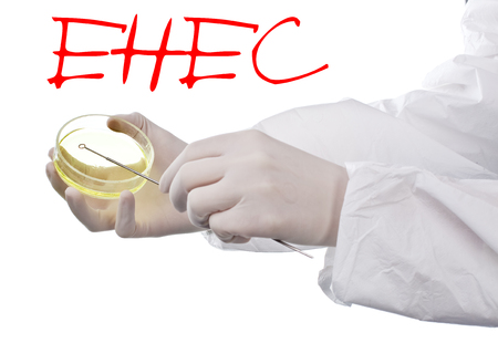 ehec: Scientist holding an agar plate which is growing E.coli