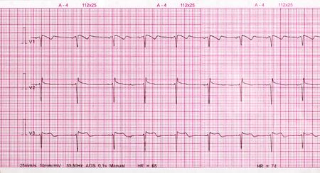 cardiological: ECG printout isolated on white background