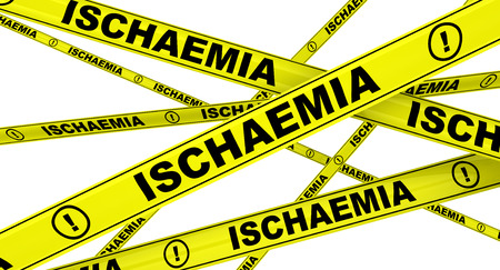 local supply: Ischaemia. Yellow warning tapes