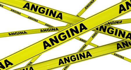 angina: Angina de pecho. Cintas de advertencia amarillas