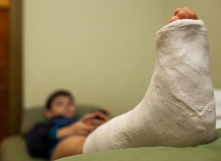 pierna rota: Niño pequeño con la pierna rota en yeso acostado en el sofá en casa y el uso de teléfonos inteligentes. Enfoque en primer plano
