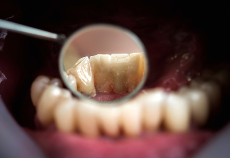 prothetic: Resin crown for temporary treatment, that are used in cases when the patient has to walk away with buffed teeth from the dentist. These have protective role on teeth, with less regard on aestetics Stock Photo