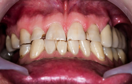 destructed: Patients mouth before entire dental treatment and changes