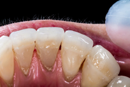 treating: Patients mouth before entire dental treatment and changes