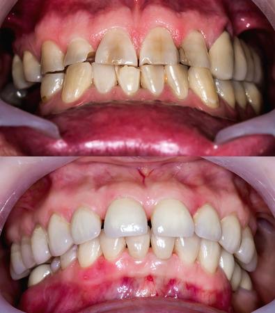 Frontale tanden voor en na restauratie. Stockfoto