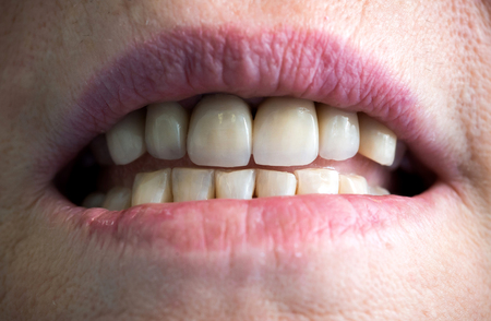 destructed: E-max ceramic crowns fixed in oral cavity Stock Photo