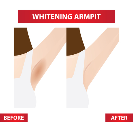 dark , white armpit before and after vector illustration Stock Illustratie