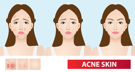 Acne skin in woman  vector illustration