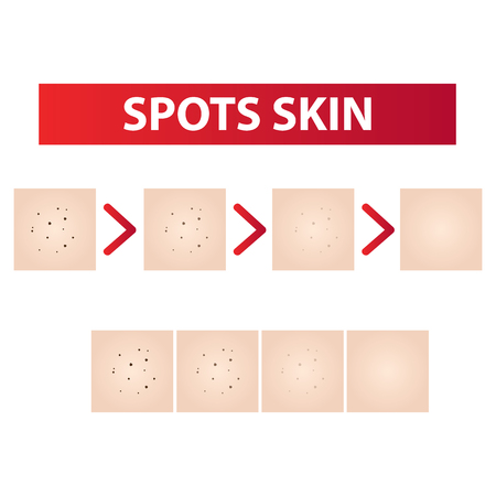 Spots skin steps to clear vector illustration Stock Vector - 97123287
