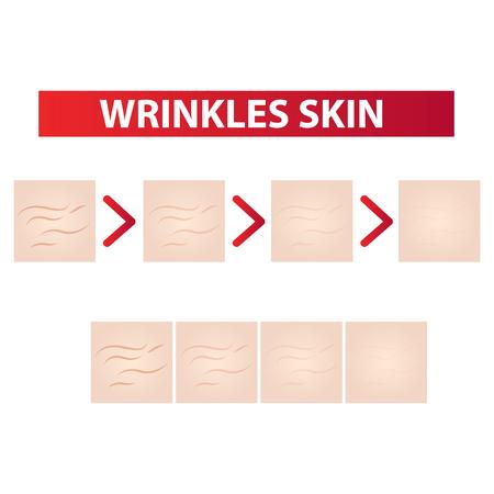 Rughe della pelle per chiarire l'aspetto illustrazione vettoriale Vettoriali