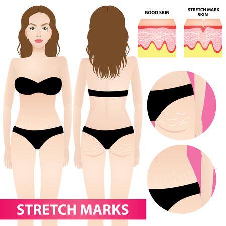 Woman stretch marks skin  illustration