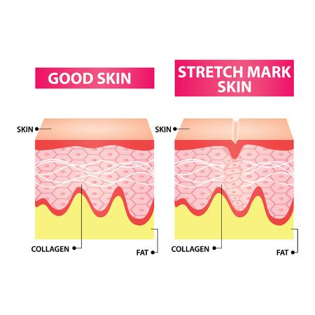 Stretch marks skin  illustration Ilustração