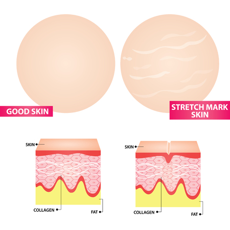 Stretch marks skin  illustration 일러스트