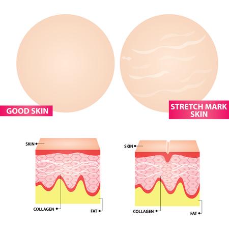 Stretch marks skin  illustration Stock Illustratie