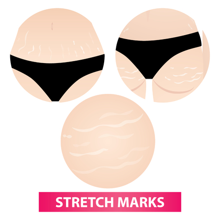 Stretch marks skin  illustration  イラスト・ベクター素材