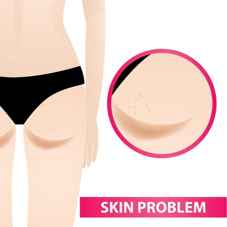 Dark skin on bottom problem.
