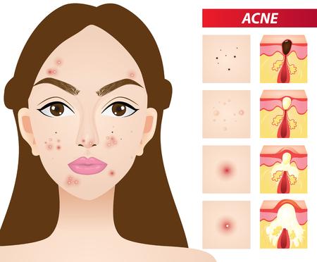 Types of acne vector illustration Ilustracja