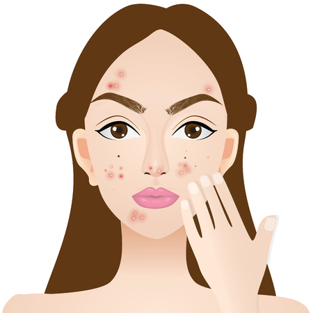 Types of acne , skin problems vector illustration