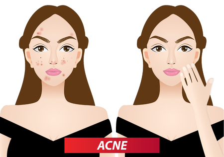 A girl with and without acne vector illustration