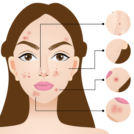 A woman with acne skin problem vector illustration