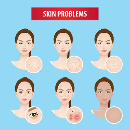 Problems skin woman vector illustration