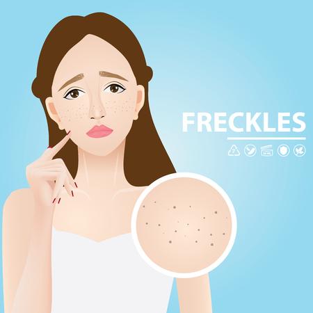 Freckles skin vector illustration