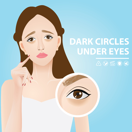 Dark circles under eyes vector illustration