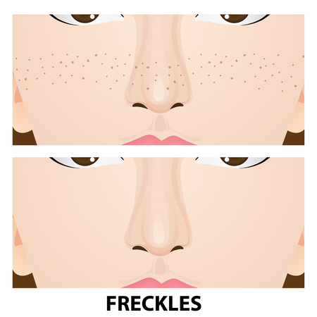 Face with and without freckles vector illustration. Illustration
