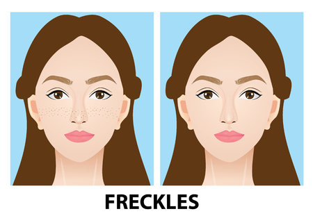A woman with and without freckles vector illustration Vettoriali