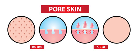 Close open pores skin before and after vector illustration.