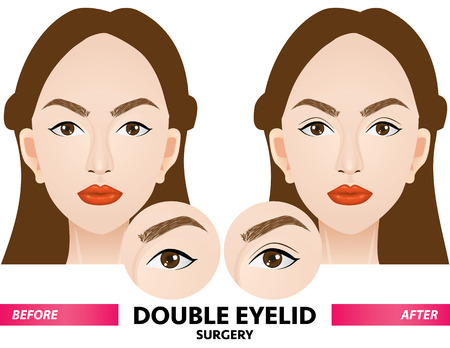 double eyelid surgery before and after vector illustration