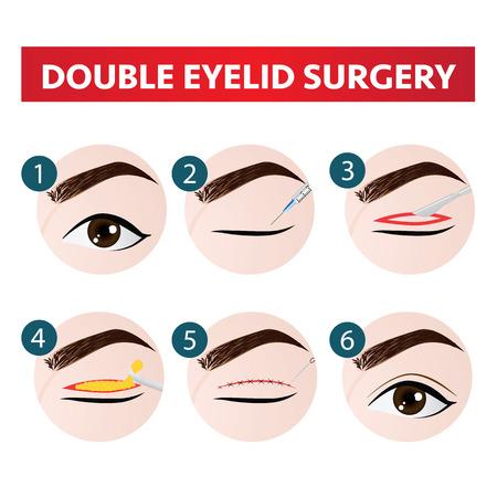 illustration vectorielle de double paupière chirurgie étape
