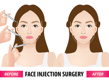 Face injection surgery before and after vector illustration Çizim