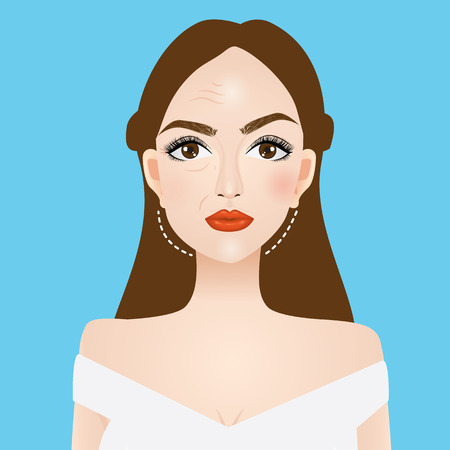 lifting and wrinkle injection surgery vector illustration Illustration