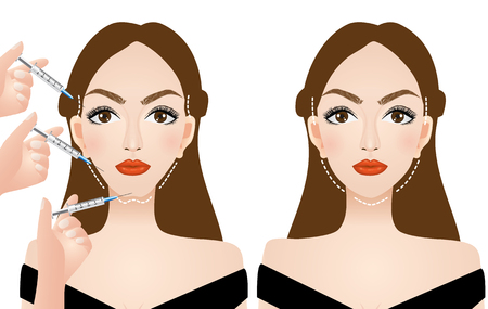 face injection surgery vector illustration
