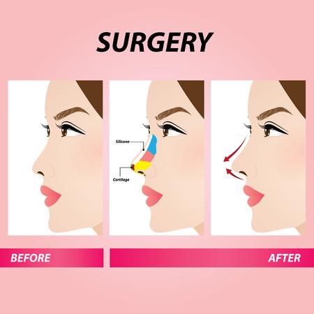chirurgie de beauté du nez, illustration vectorielle de rhinoplastie Vecteurs